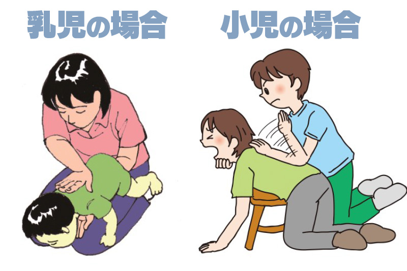 赤ちゃんが誤飲したときの吐き出させ方